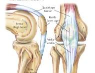 Nyeri di Lutut Sehari Sampai Dua Kali