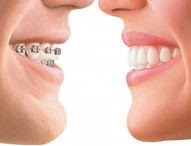 Penggunaan Orto atau Kawat Gigi