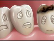Perawatan Gigi Usia Di atas 30 Tahun