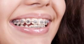Pasang Behel Bukan di Dokter Gigi, Bahaya Nggak?