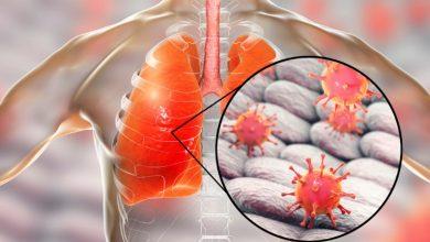 Photo of Virus Corona Menyerang Semua Bagian Paru-Paru